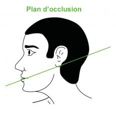 plan d'occlusion